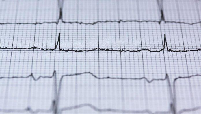 5 consejos para evitar enfermedades cardíacas