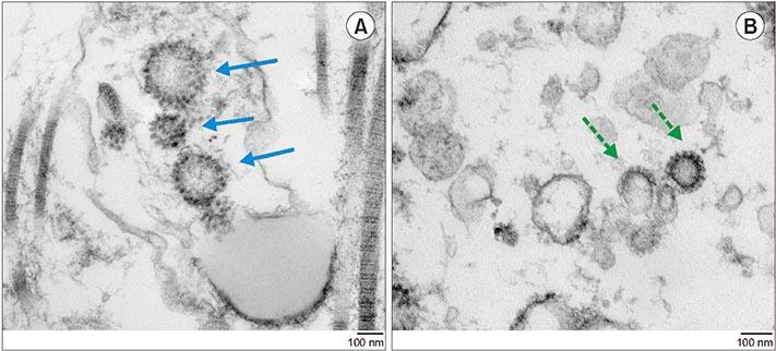 COVID-19 también daña los testículos, sugiere estudio