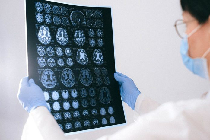 Derrame cerebral señales de alerta